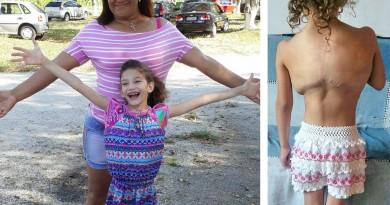Menina tumor ajuda Pinda 5