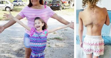 Mãe Maria de Fátima e a pequena Maria Clara; vaquinha online garantiu colete de correção postural para tratamento da menina em Pinda (Foto: Arquivo Pessoal)