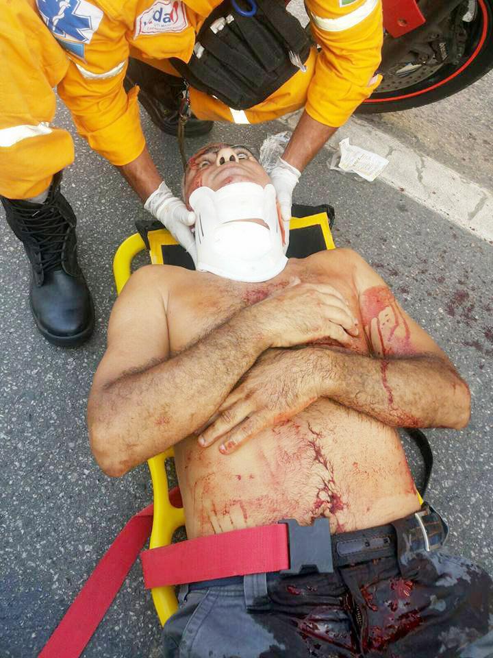 Vítima de acidente com linha chilena; projeto quer combater uso (Foto: Divulgação SOS Brasil)
